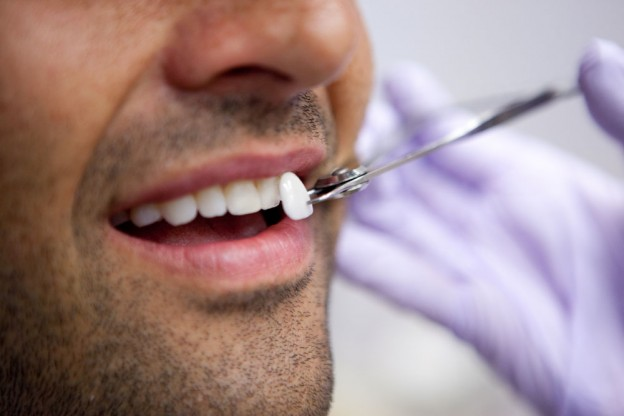 Bridges or Dental Implants: Which Are Your Best Options?
