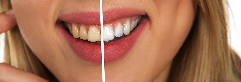 7 Amazing Natural Hacks to Keep Your Teeth Cleaned