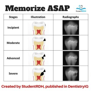Must-Know Classifications Of Dental Caries For The National Dental Hygiene Boards
