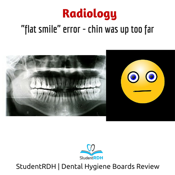"""Q: Which radiographic error caused this """"flat"""" smile?"""