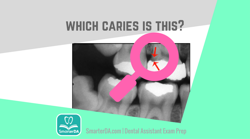 Q: The image highlights which type of caries?