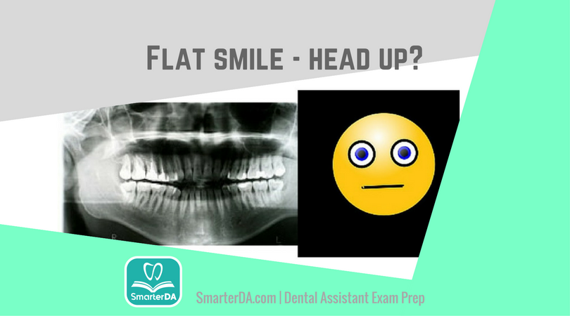 "Q: Which radiographic error caused this ""flat"" smile?"