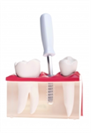 Dental Implant FAQs