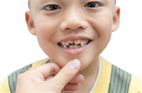 4 Tips to Help Your Child Enjoy Going to the Dentist
