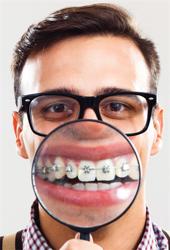 White Spot Lesions: A Hygiene Perspective in the Orthodontic Practice Hygienist Miranda Valenzuela discusses prevention and remineralization of white spot lesions for orthodontic patients.