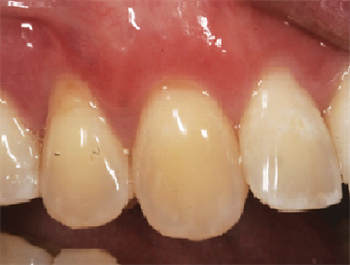 Does My Patient Need a Gum Graft? by Dr. Brian S. Gurinsky Dentaltown board member Dr. Brian Gurinsky discusses the classification system for tissue grafts, and how to understand how to determine if a patient needs one.